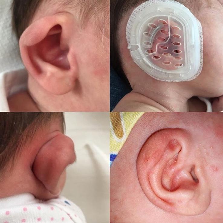 Abstehende Ohren Baby Pflaster